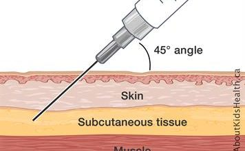 Intravenous-To-Subcutaneous Drugs