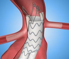Stent Grafts market