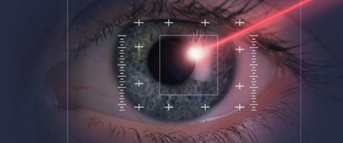 global ophthalmic lasers market
