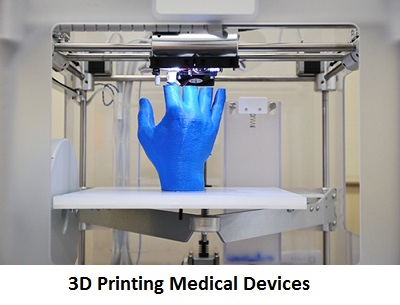 3D Printing Medical Devices Market 2019-2025 Global Analysis with Top Key Players- Stratasys Ltd, SLM Solutions Group AG, EnvisionTEC, 3D Systems, Bio3D Technologies