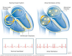 Atrial Fibrillation Market: Demand, Insights, Analysis, Opportunities, Segmentation and Forecast to 2026
