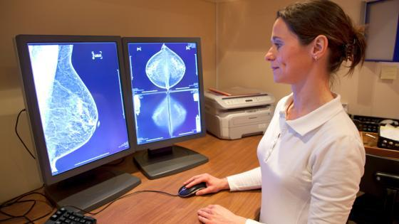 Breast Imaging Technologies Market 2025 Outlook Analysis| Promising Technology in the Near Future