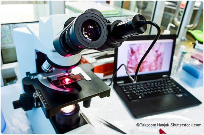 Digital Pathology Market Recent Trends, In-depth Analysis, Market Size Research Report Forecast up to 2024 Leading By Ventana Medical Systems, Apollo Enterprise Imaging, 3DHISTECH,  Leica Biosystems