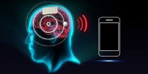 Brain Monitoring Market Set for Rapid Growth and Trend, by 2026