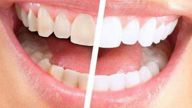 Global Cold Light Teeth Whitening Instrument Market