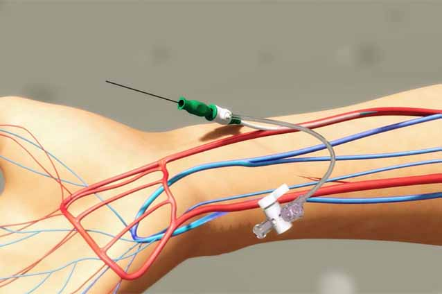 Global Orbital Atherectomy Device Market 2019- Segment and Downstream Analysis