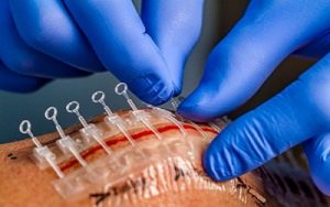 Global Polymers for Implantable Medical Devices Market