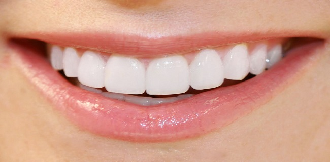 Analysis of Future Trend : Porcelain Teeth Market 2019 – Cosmetic Dentistry, Colgate, Clayton Dental, Veneers Brisbane