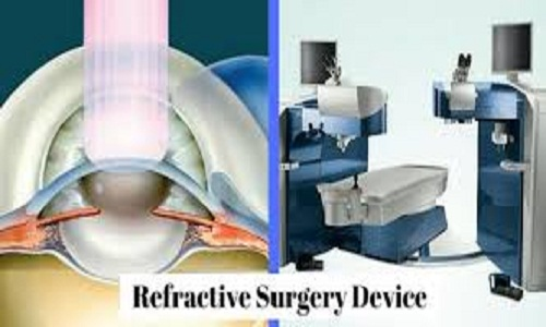 Worldwide Refractive Surgery Devices Market to Grow at a Steady CAGR 2019-2025; Lumenis, Bausch & Lomb Inc, Alcon
