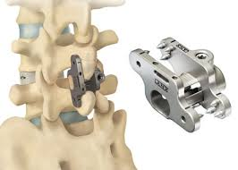 Spinal Fusion Devices Market by 2026 Growth Rate, Sales