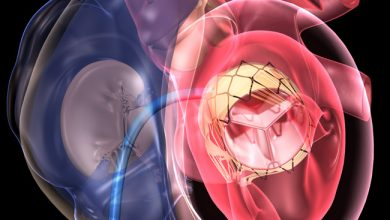 Transcatheter Mitral Valve Repair and Replacement Market