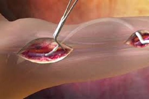 Vascular Graft Market 2019 Research Analysis by Top Key Players- Cardinal Health, Endologix, Cook Medical, C. R. Bard, LeMaitre Vascular, B. Braun Melsungen AG, Terumo