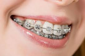 global dental braces market