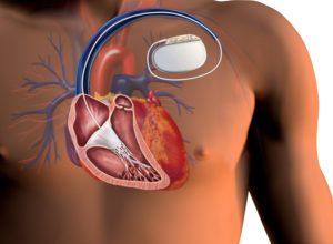 transvenous implantable cardioverter defibrillators market with key players 2019