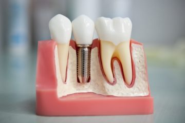 Dentures Market Unique Research Methodologies Offers High Business Outlook 2023| Focused by Top Key players: VITA Zahnfabrik, Ruthinium Dental products pvt ltd