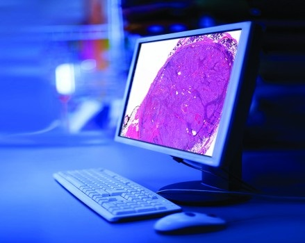 Digital Pathology Market Latest Technological Growth and Investment Research Report 2023| Focused by Top Leading Players: Olympus Corporation, Leica Biosystems, Philips Healthcare
