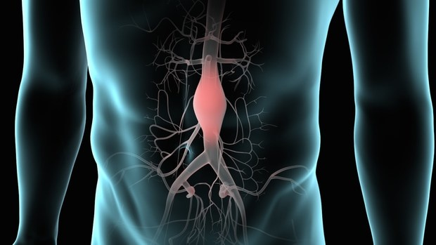 International Aortic Aneurysm Marketplace and Alternatives 2017-2025 | Key Gamers: Cook dinner Clinical's Medtronic PLC, W.L.Gore & Friends, MicroPort Medical Company, Terumo Company, Endologix, Jotec GmbH, Boston Medical Company