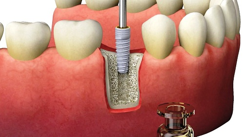 Global Dental Bone Graft Substitutes Market 2019-2025: Geistlich, Zimmer, DePuy Synthes