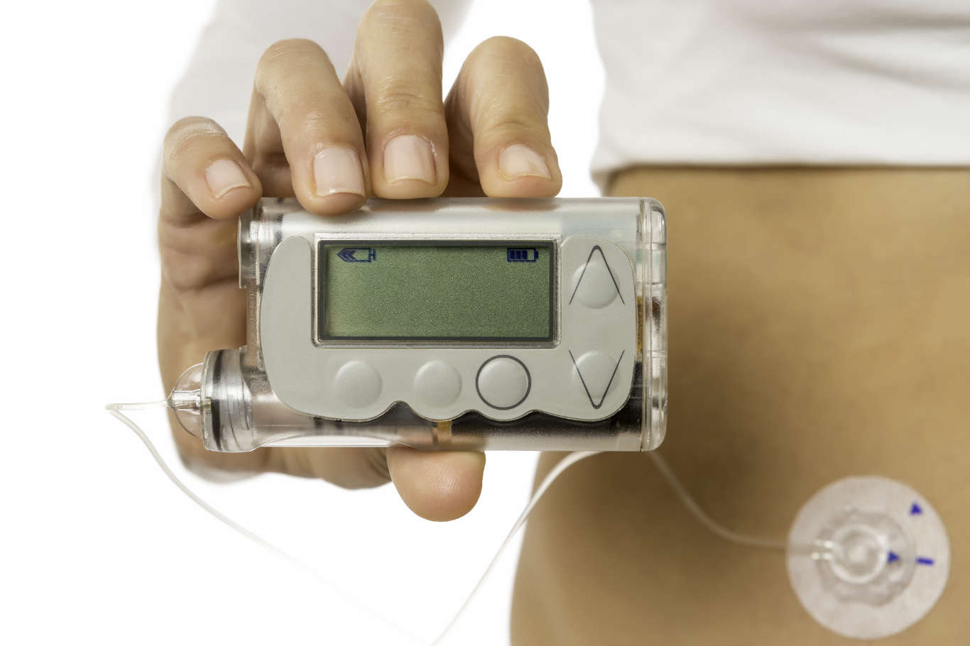 Global Insulin Pump Market Segment Forecast 2023 – Market Size, Share & Trends Analysis Report 2018 to till 2023