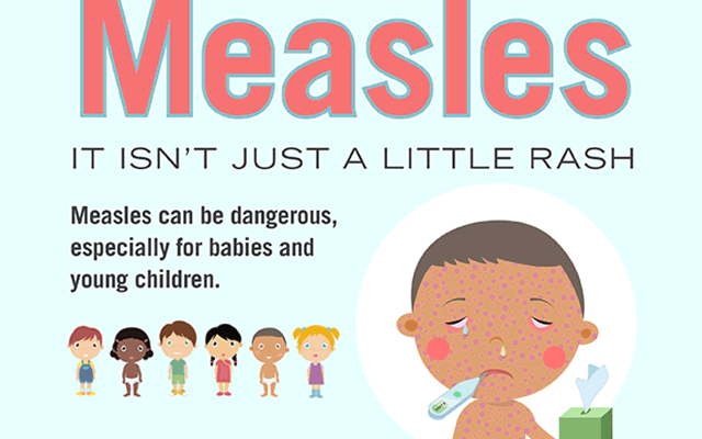 Global Measles Industry, 2018 | Key Players:  Novartis, Abbott, Biomedical Diagnostics, Johnson & Johnson Services, Sanofi, Merck