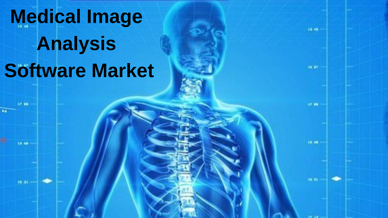 Medical Image Analysis Software Market: 2025 What Recent Study say about Top Companies like AGFA Healthcare, AQUILAB, Carestream Health, Esaote, GE Healthcare, Image Analysis, INFINITT Healthcare, Merge Healthcare, MIM Software