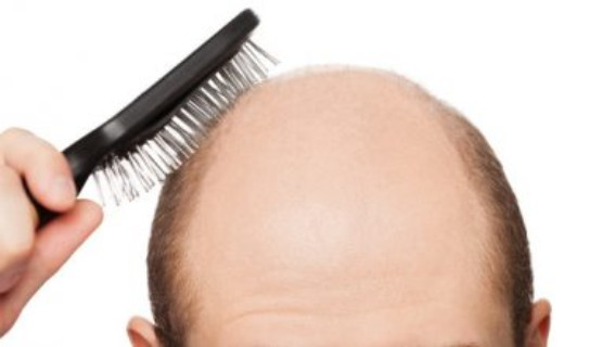 OTC Hair Loss Treatments Market