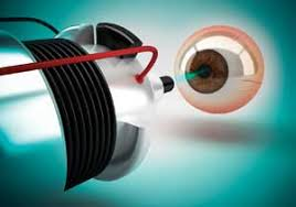 Global Ophthalmic Lasers Market A comprehensive study by Key Players