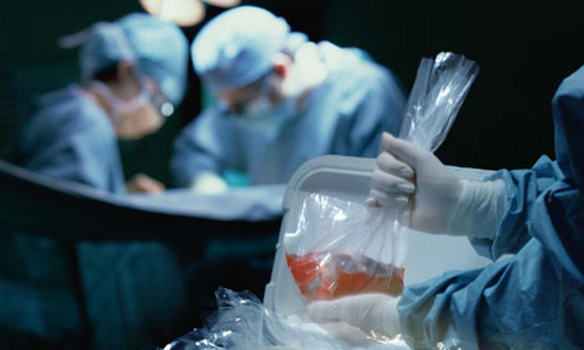 Global Organ Transplantation Market Intelligence Report for Comprehensive Information 2019-2024