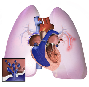 World Pulmonary Arterial High blood pressure Remedy Marketplace Forecast By means of Best Main Producers | GlaxoSmithKline plc, Pfizer Inc. and Actelion Inc.