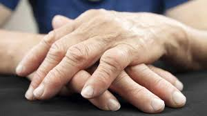 Rheumatoid Arthritis Market Size And Analysis To 2027