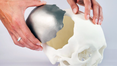 Global 3D Printing Medical Devices Market