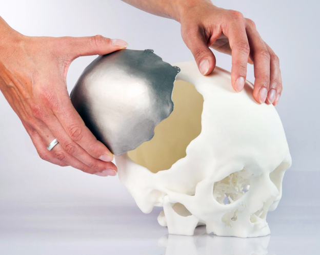 Global 3D Printing Medical Devices Market 2019 -3D Systems,3T RPD,Concept Laser