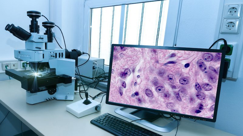 Digital Pathology Market Is Expected To Flourish At a CAGR Of +13% By 2024 With Top Key Players: Danaher, Hamamatsu Photonics, Roche, Philips, Olympus, PerkinElmer, Sectra, Nikon, Definiens, 3DHISTECH, Visiopharm