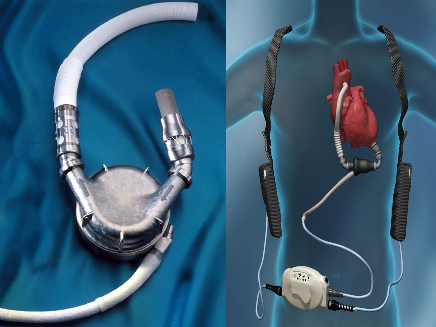 Latest Trends In Ventricular Assist Device Market 2019 | Top Key Players: AbioMed, Abbott (Thoratec), Medtronic (HeartWare), Berlin Heart