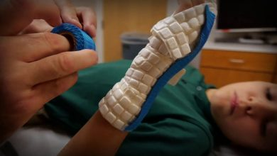 Casting and Splinting (Supplies and Equipment) Market