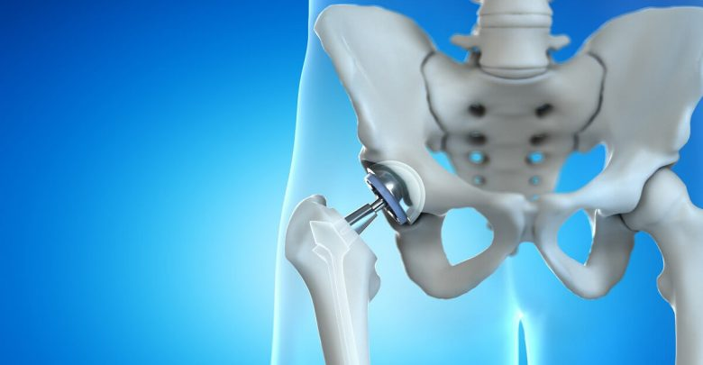 Total Hip Replacement Market by Technology, Application