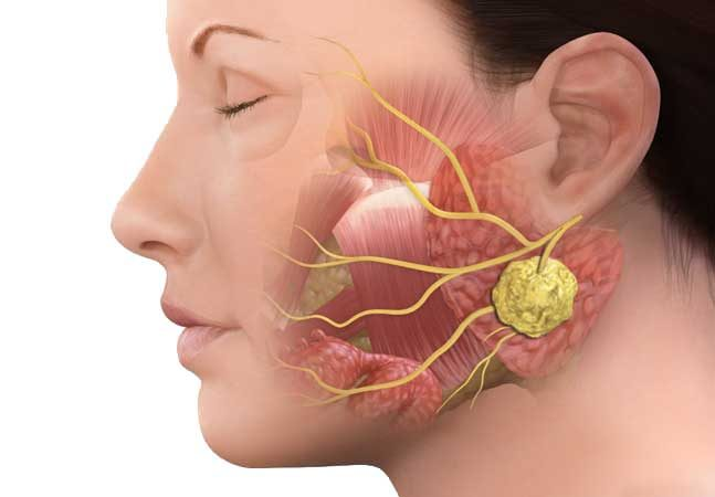 Parotid Tumor Market 2023: In-Depth Analysis on Market Dynamics, Segmentation & Emerging Growth Factors